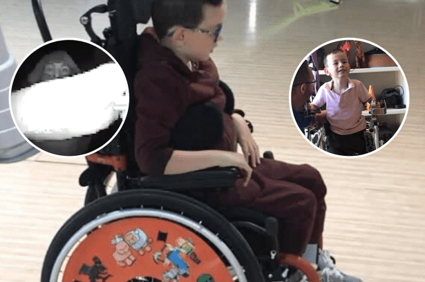 Family thankful after Gardai recovers family car and child's wheelchair from theft